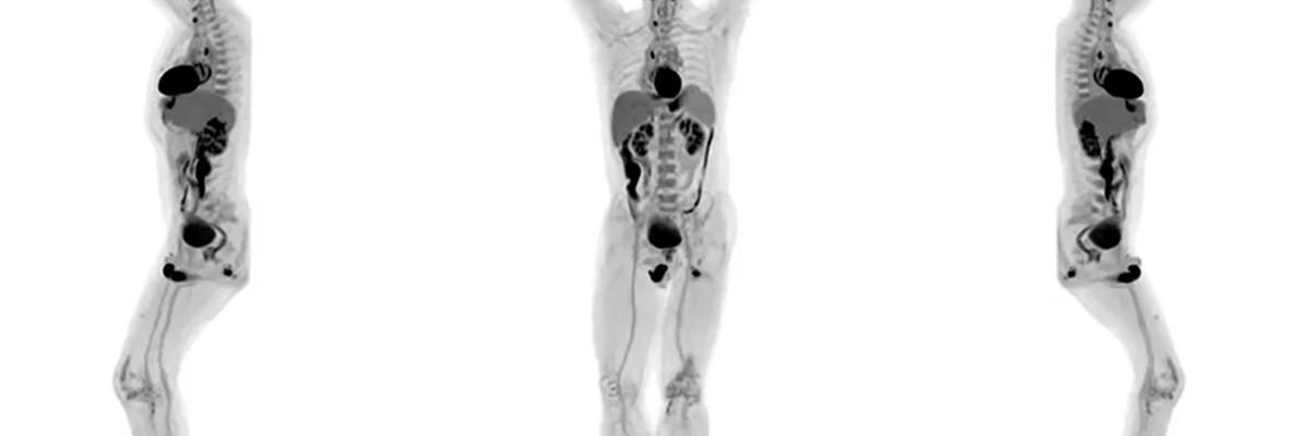 몸 전신을 3D로 촬영하는 신개념 '스캐너' 탄생